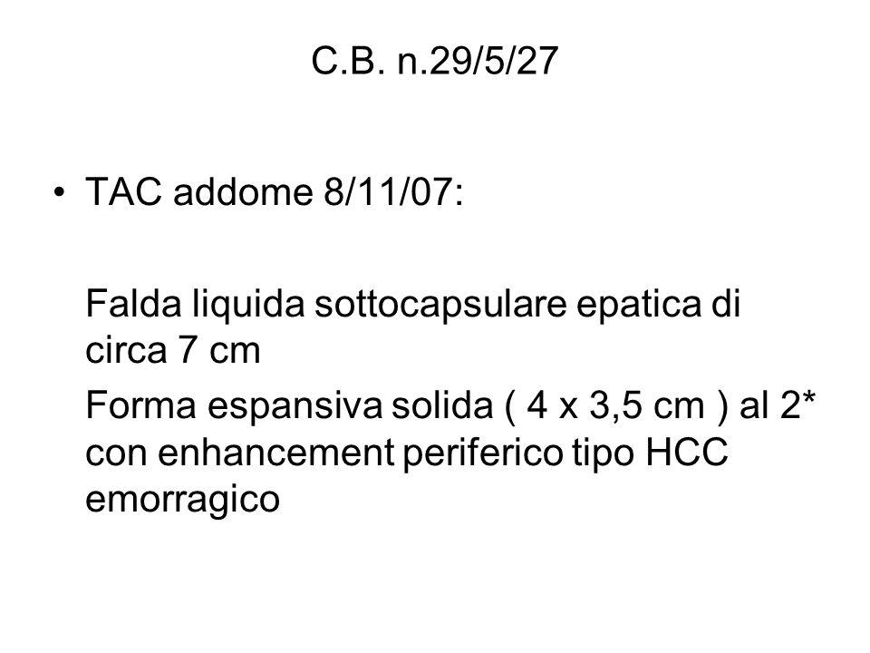 TAC addome 8/11/07: Falda liquida sottocapsulare epatica di circa 7 cm Forma espansiva solida ( 4 x 3,5 cm ) al 2* con enhancement periferico tipo HCC