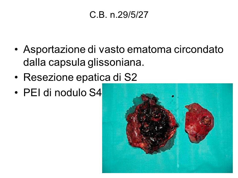 C.B. n.29/5/27 Asportazione di vasto ematoma circondato dalla capsula glissoniana. Resezione epatica di S2 PEI di nodulo S4