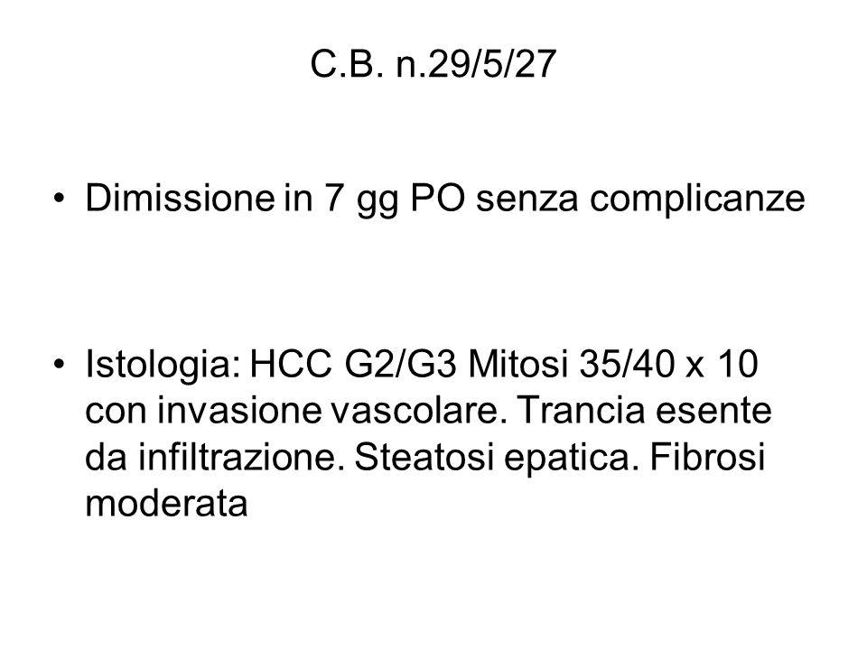 C.B. n.29/5/27 Dimissione in 7 gg PO senza complicanze Istologia: HCC G2/G3 Mitosi 35/40 x 10 con invasione vascolare. Trancia esente da infiltrazione