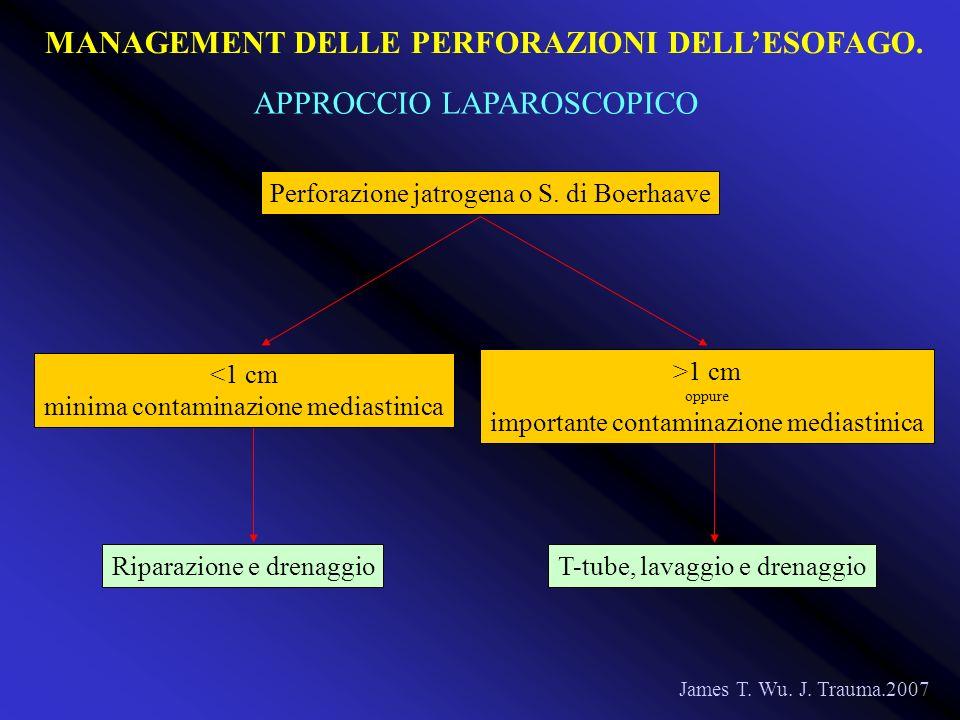 Perforazione jatrogena o S. di Boerhaave James T. Wu. J. Trauma.2007 <1 cm minima contaminazione mediastinica Riparazione e drenaggioT-tube, lavaggio