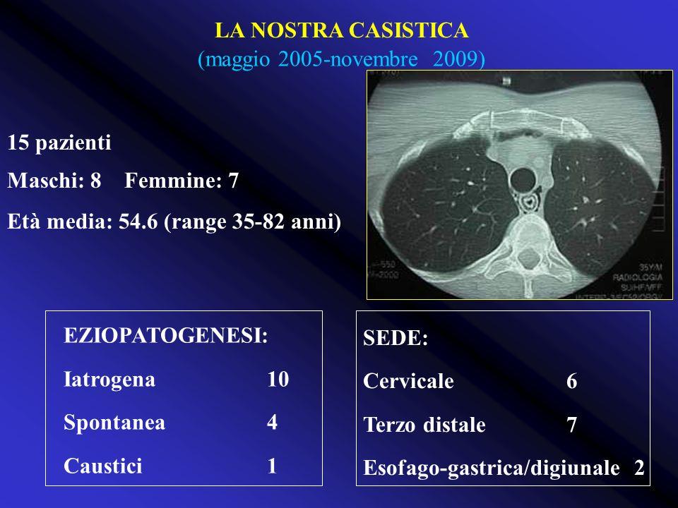 (maggio 2005-novembre 2009) 15 pazienti Maschi: 8 Femmine: 7 Età media: 54.6 (range 35-82 anni) EZIOPATOGENESI: Iatrogena10 Spontanea4 Caustici1 SEDE: