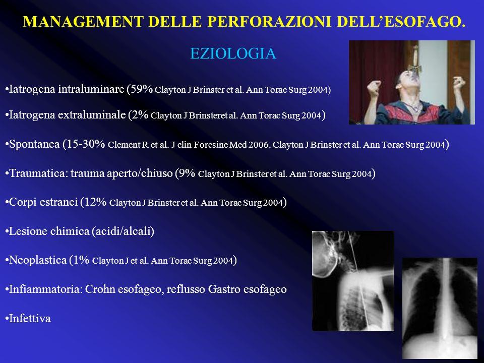 EZIOLOGIA Iatrogena intraluminare (59% Clayton J Brinster et al. Ann Torac Surg 2004) Iatrogena extraluminale (2% Clayton J Brinsteret al. Ann Torac S