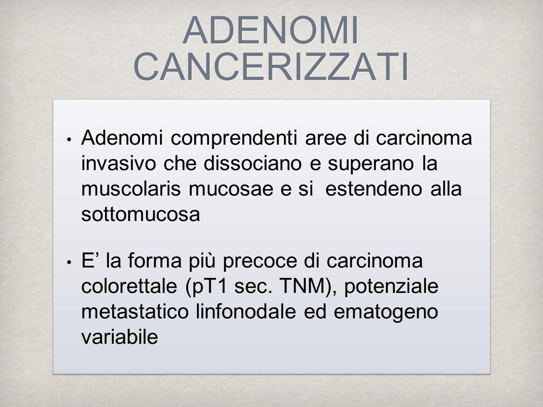 ADENOMI CANCERIZZATI Adenomi comprendenti aree di carcinoma invasivo che dissociano e superano la muscolaris mucosae e si estendeno alla sottomucosa E