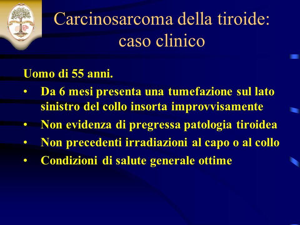 Carcinosarcoma della tiroide: caso clinico Uomo di 55 anni.