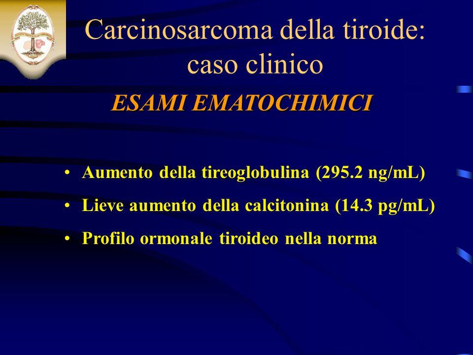 ESAMI EMATOCHIMICI Carcinosarcoma della tiroide: caso clinico Aumento della tireoglobulina (295.2 ng/mL) Lieve aumento della calcitonina (14.3 pg/mL) Profilo ormonale tiroideo nella norma