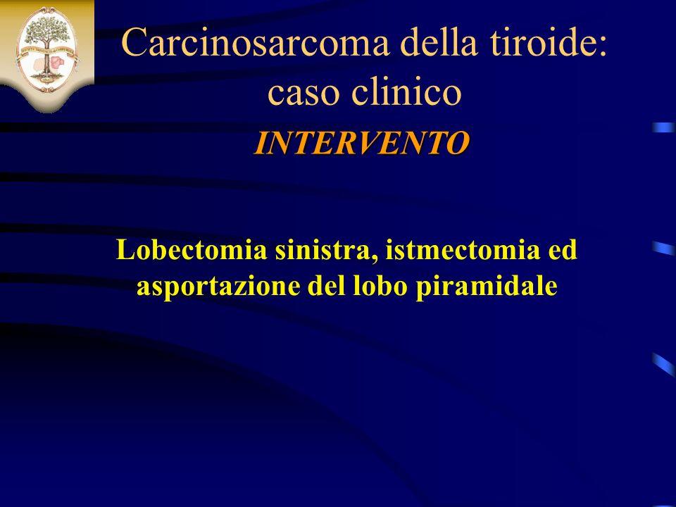Lobectomia sinistra, istmectomia ed asportazione del lobo piramidale INTERVENTO Carcinosarcoma della tiroide: caso clinico