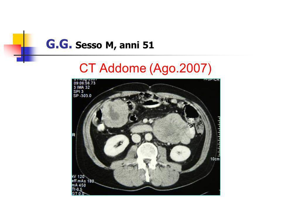 CT Addome (Ago.2007) G.G. Sesso M, anni 51