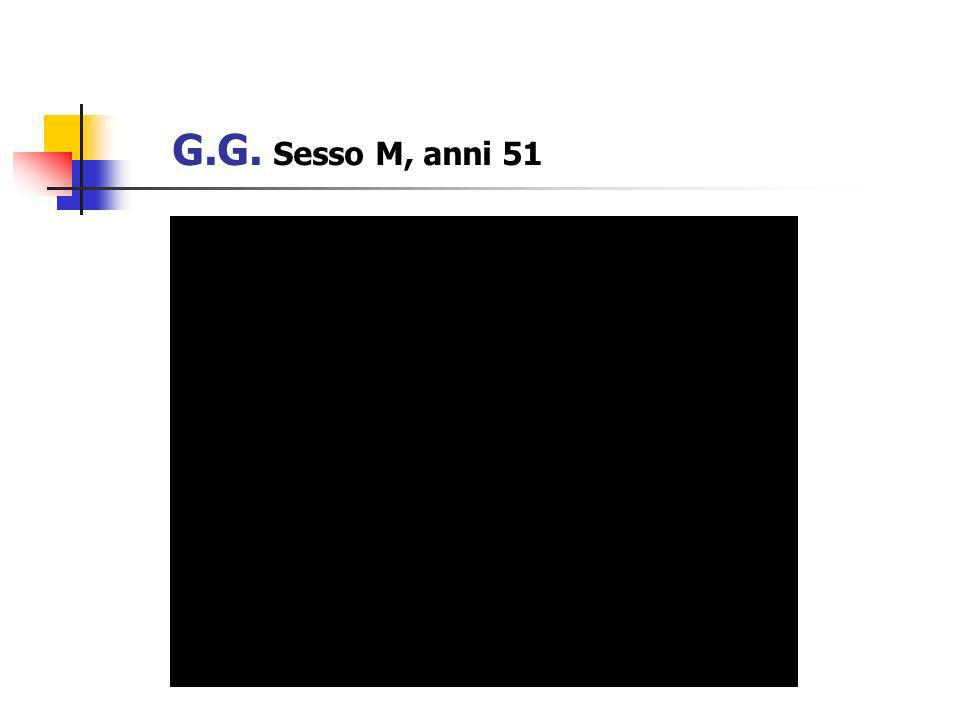 Istologia (Ago.2007) Localizzazione multipla di GIST addominale, CD 117 ++, CD 34 +, ACTML+.