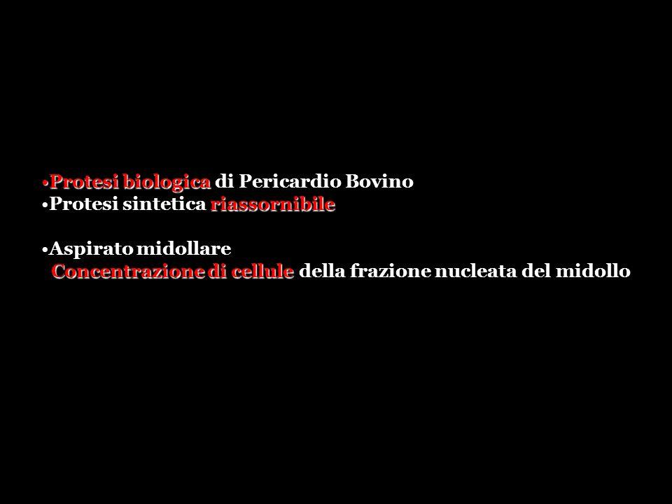 Protesi biologicaProtesi biologica di Pericardio Bovino riassornibileProtesi sintetica riassornibile Aspirato midollare Concentrazione di cellule Concentrazione di cellule della frazione nucleata del midollo