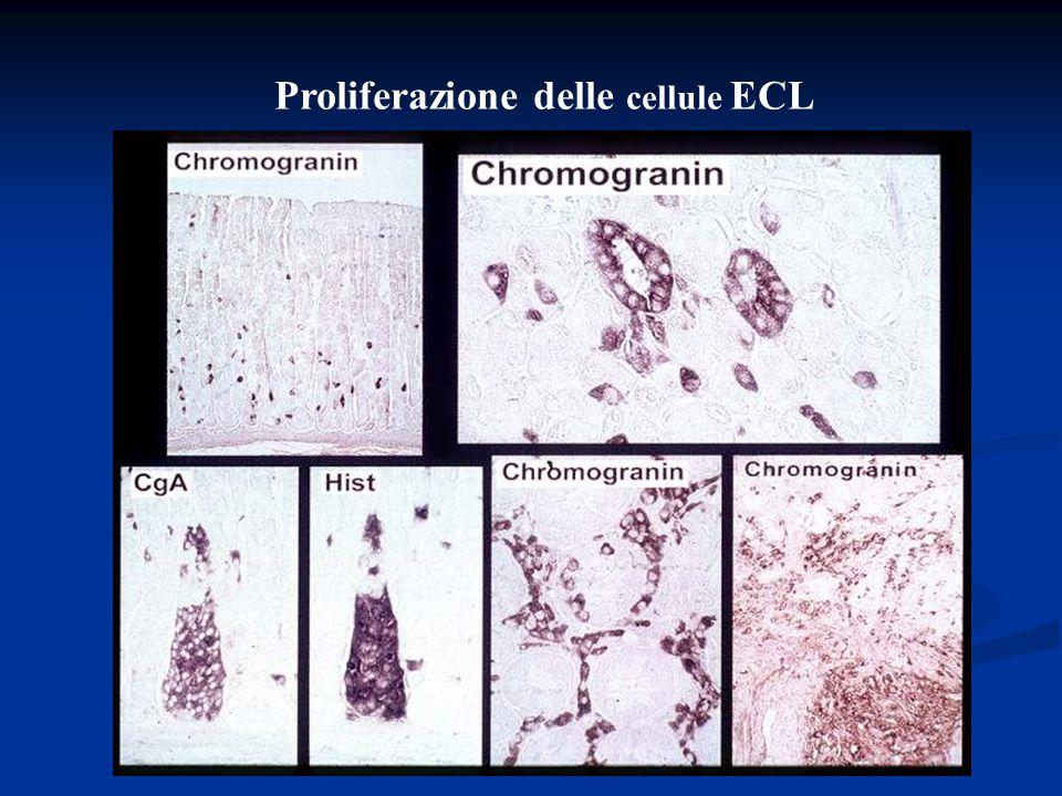 Immunocitochimica di un ECLoma umano (tipo 3) in cultura cellulare