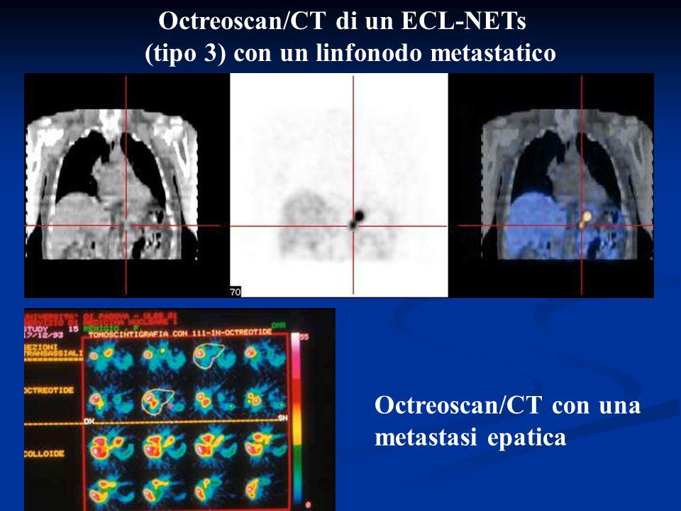 Trattamento NETs Gastrici Tipo I e II Tipo III En bloc con linfadenectomia En bloc con linfadenectomia <1cm <3-5 lesioni >1cm >5 lesioni Endoscopia Antrectomia ed escissione locale R.