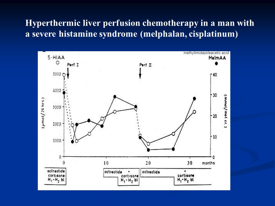 Hyperthermic liver perfusion chemotherapy in a man with a severe histamine syndrome (melphalan, cisplatinum) methylimidazoleacetic acid
