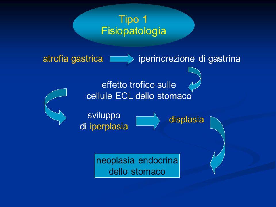 Tumore associato a Sindrome ZES-MEN 1 Tumore associato a Sindrome ZES-MEN 1 Tumori rari, spesso multicentrici, da pochi mm.