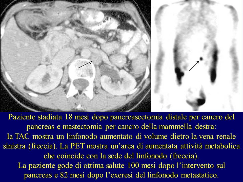 Paziente stadiata 18 mesi dopo pancreasectomia distale per cancro del pancreas e mastectomia per cancro della mammella destra: la TAC mostra un linfon