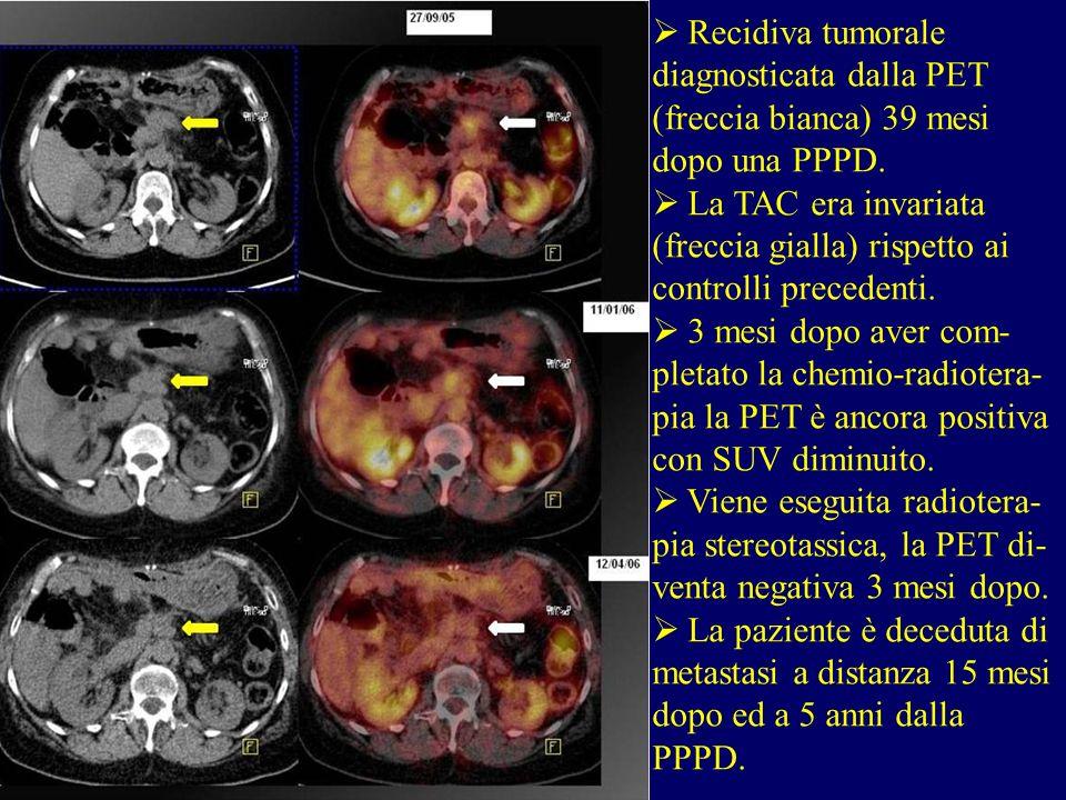 Recidiva tumorale diagnosticata dalla PET (freccia bianca) 39 mesi dopo una PPPD. La TAC era invariata (freccia gialla) rispetto ai controlli preceden