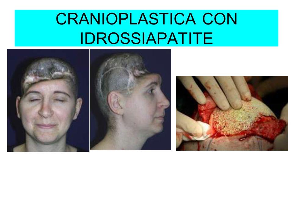 CRANIOPLASTICA CON IDROSSIAPATITE