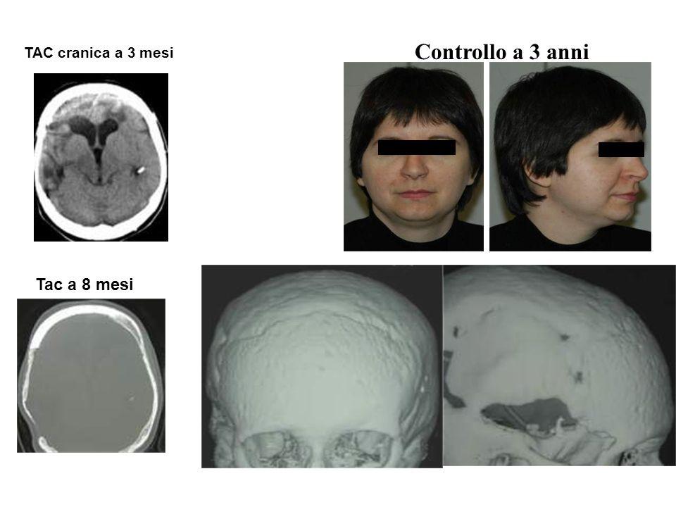Controllo a 3 anni A tre anni TAC cranica a 3 mesi Tac a 8 mesi