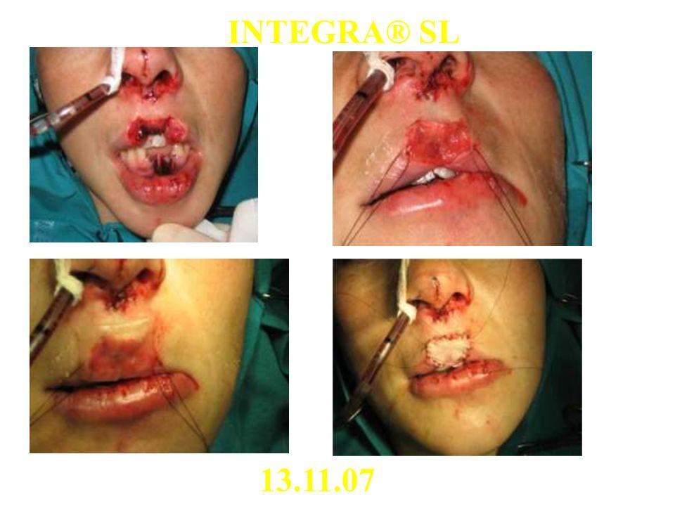 13.11.07 INTEGRA® SL