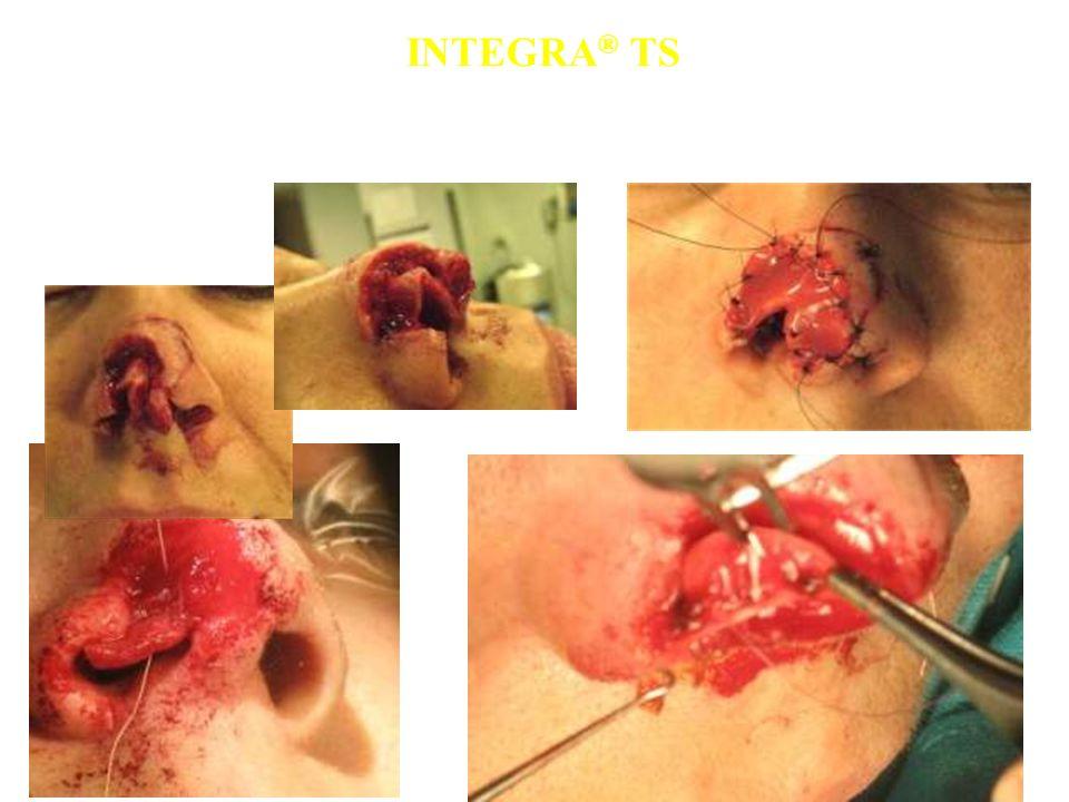 INTEGRA ® TS