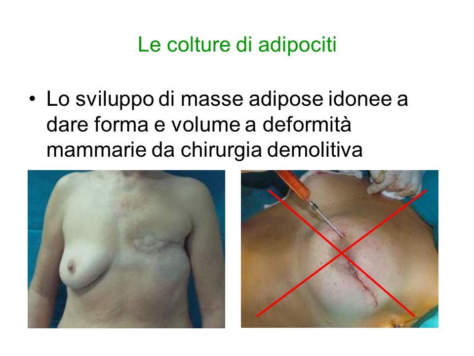 Le colture di adipociti Lo sviluppo di masse adipose idonee a dare forma e volume a deformità mammarie da chirurgia demolitiva