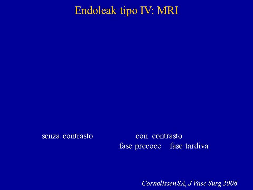 Endoleak tipo IV: MRI senza contrasto con contrasto fase precoce fase tardiva Cornelissen SA, J Vasc Surg 2008
