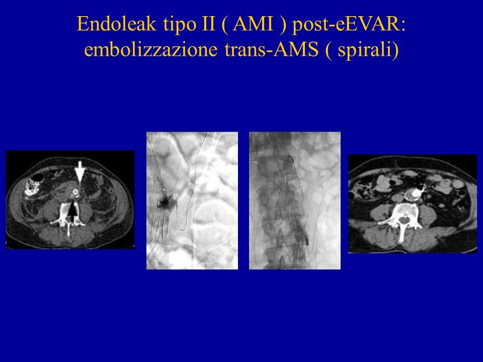 Endoleak tipo II ( AMI ) post-eEVAR: embolizzazione trans-AMS ( spirali)