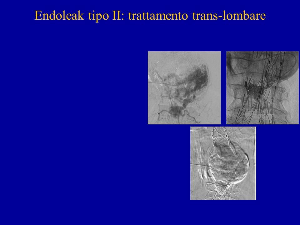 Endoleak tipo II: trattamento trans-lombare