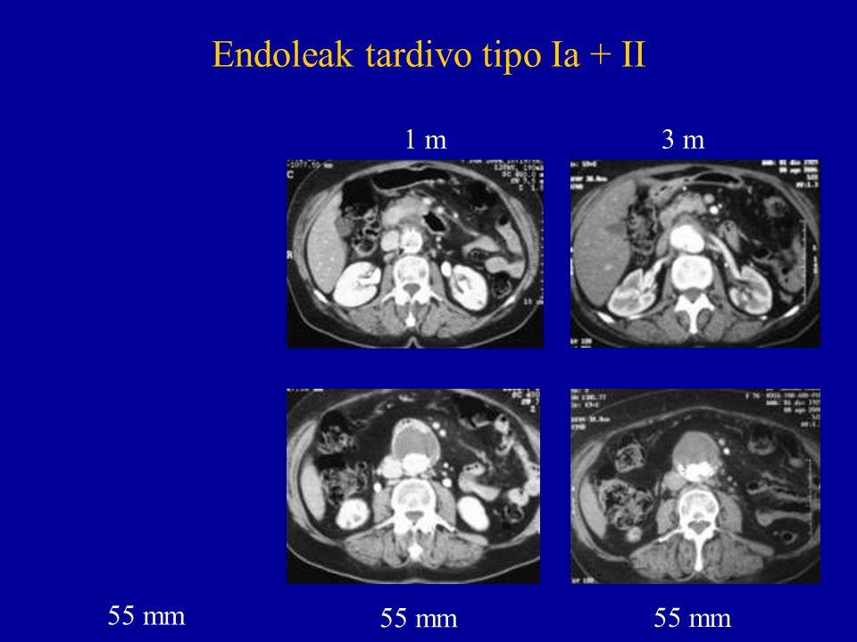 Endoleak tardivo tipo Ia + II 55 mm 1 m 3 m 55 mm