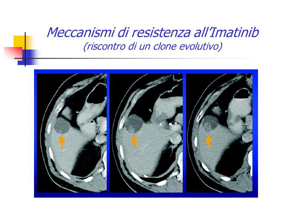 Meccanismi di resistenza allImatinib (riscontro di un clone evolutivo)