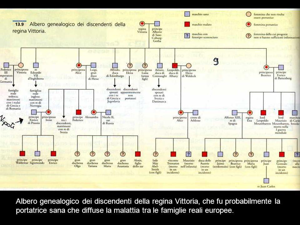 Albero genealogico dei discendenti della regina Vittoria, che fu probabilmente la portatrice sana che diffuse la malattia tra le famiglie reali europe