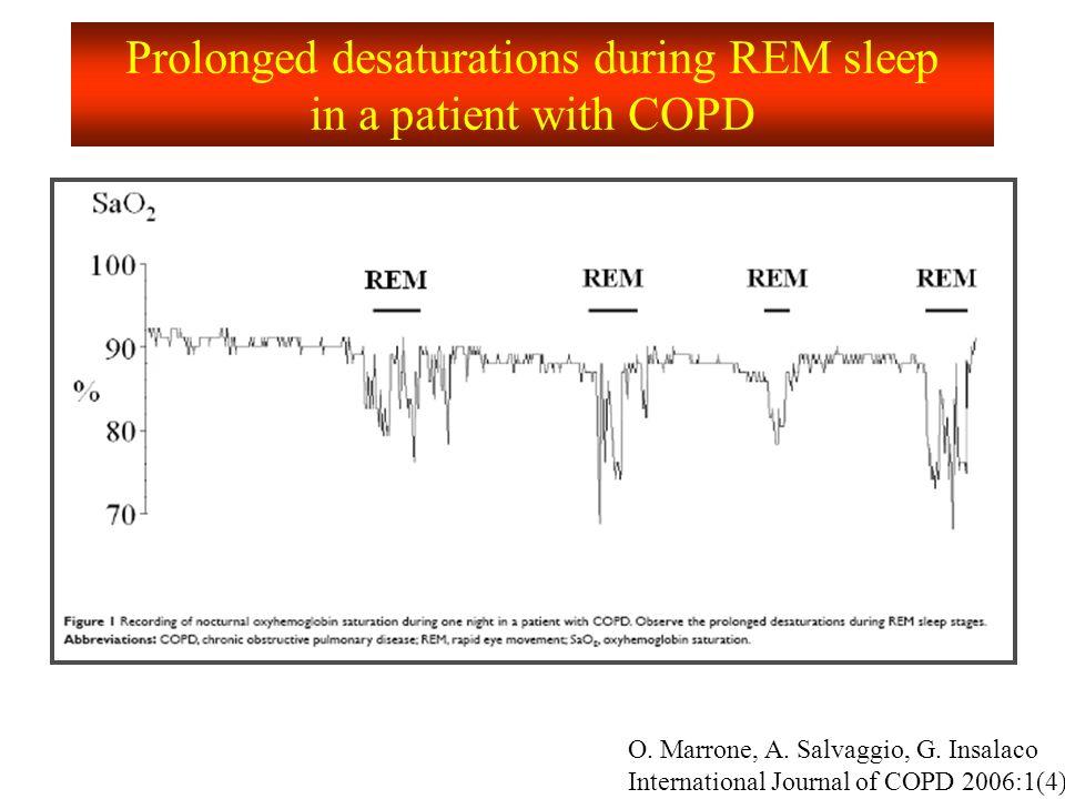 Overlap syndrome PFR: BPCO EGA: Peggiori di quanto atteso dalle PFR Ossimetria: Desaturazioni fasiche + toniche