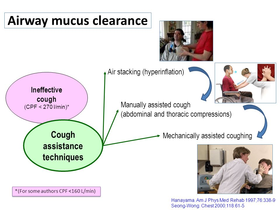 Airway mucus clearance Hanayama. Am J Phys Med Rehab 1997;76:338-9 Seong-Wong. Chest 2000;118:61-5 Ineffective cough (CPF < 270 l/min)* Cough assistan