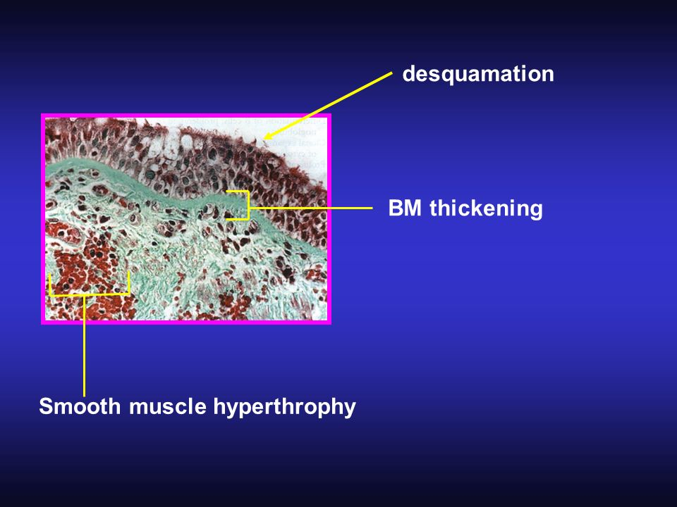BM thickening Smooth muscle hyperthrophy desquamation