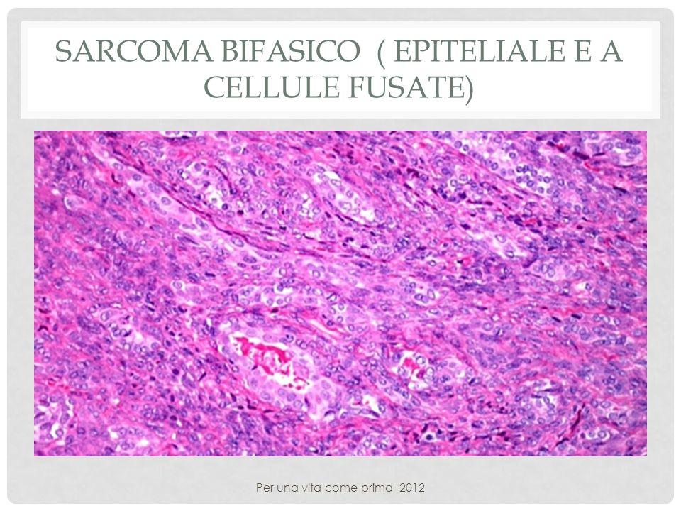 SARCOMA BIFASICO ( EPITELIALE E A CELLULE FUSATE) Per una vita come prima 2012