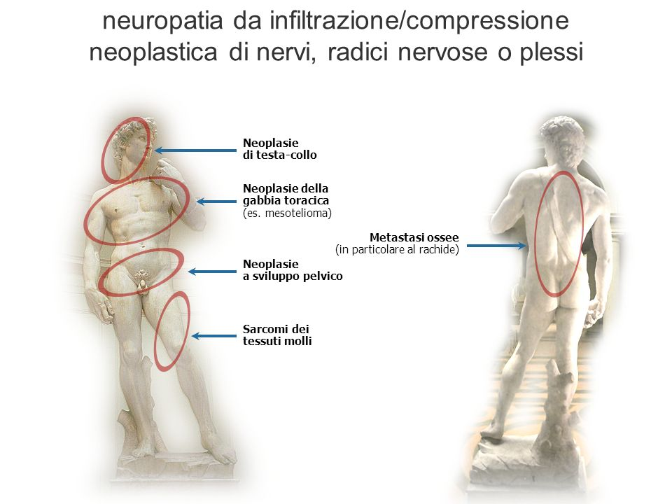 neuropatia da infiltrazione/compressione neoplastica di nervi, radici nervose o plessi Neoplasie di testa-collo Neoplasie della gabbia toracica (es. m
