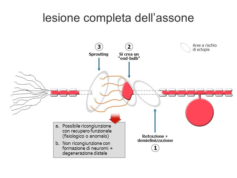 lesione completa dellassone a.Possibile ricongiunzione con recupero funzionale (fisiologico o anomalo) b.Non ricongiunzione con formazione di neuromi + degenerazione distale Retrazione + demielinizzazione 1 Si crea un end-bulb 2 Sprouting 3 Aree a rischio di ectopie