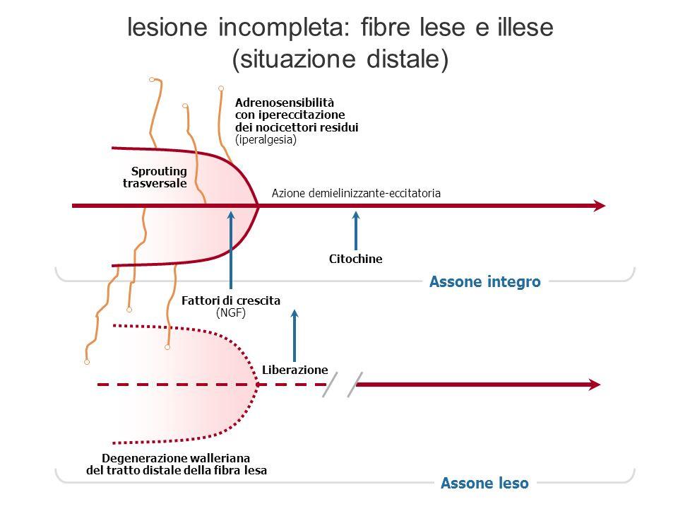 Assone integro Degenerazione walleriana del tratto distale della fibra lesa Assone leso Liberazione Citochine Azione demielinizzante-eccitatoria Fatto