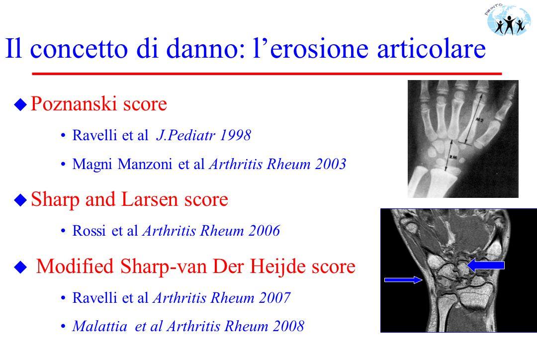 Il concetto di danno: lerosione articolare u Poznanski score Ravelli et al J.Pediatr 1998 Magni Manzoni et al Arthritis Rheum 2003 u Sharp and Larsen