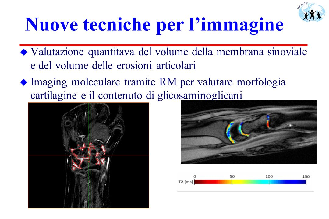 www.pediatric-rheumatology.printo.it