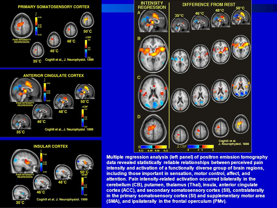 Multiple regression analysis (left panel) of positron emission tomography data revealed statistically reliable relationships between perceived pain intensity and activation of a functionally diverse group of brain regions, including those important in sensation, motor control, affect, and attention.