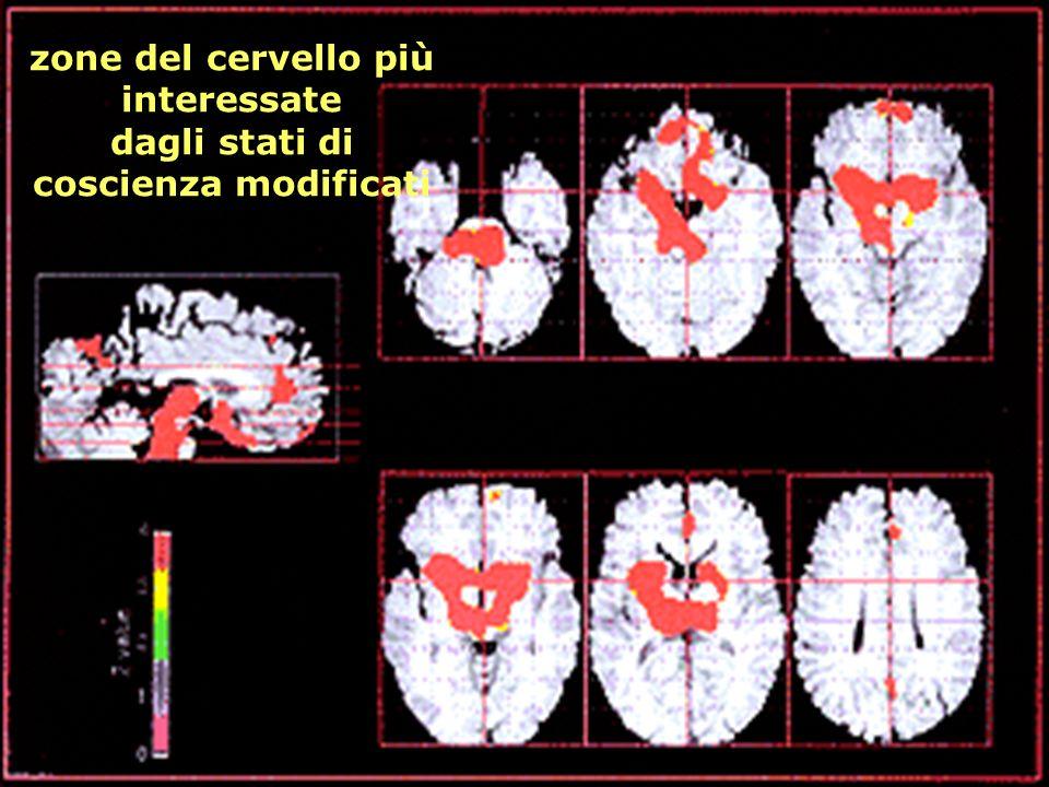 zone del cervello più interessate dagli stati di coscienza modificati