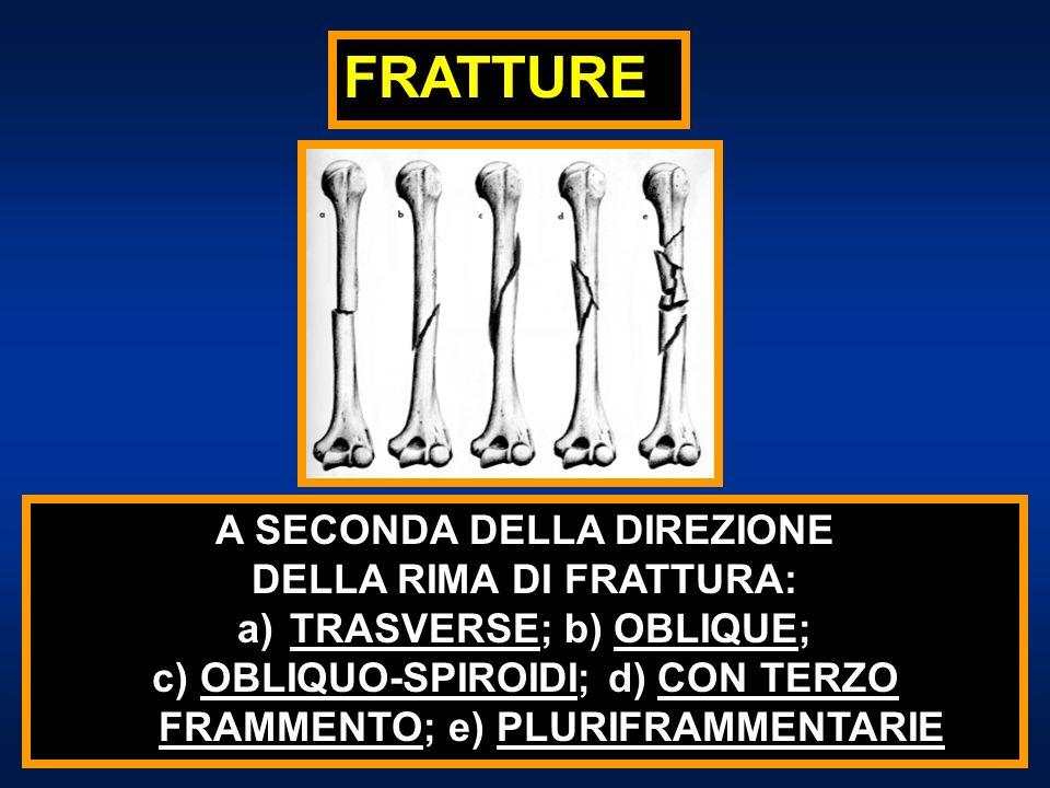 FRATTURE A SECONDA DELLO SPOSTAMENTO DEI FRAMMENTI: AD LATUS, AD LONGITUDINEM, AD AXIM, AD PERIPHERIAM