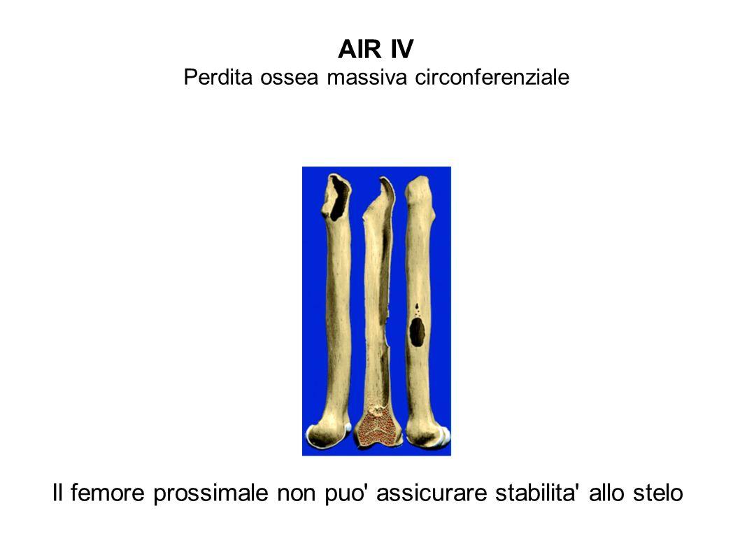 AIR IV Perdita ossea massiva circonferenziale Il femore prossimale non puo' assicurare stabilita' allo stelo