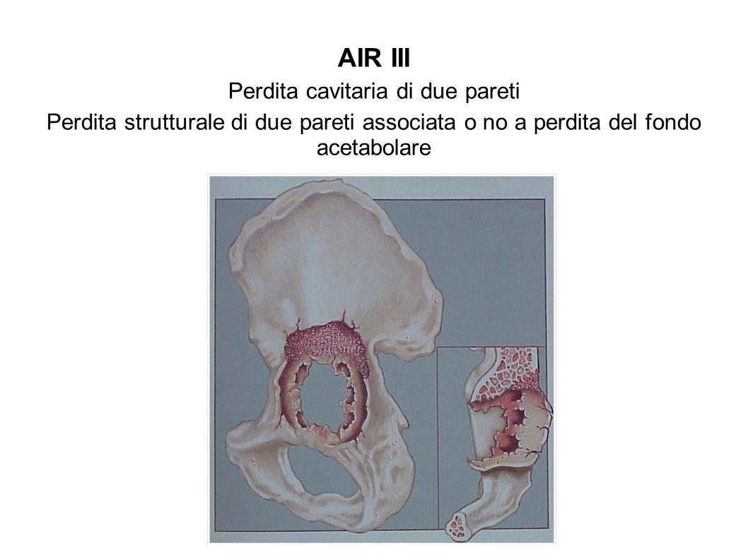 AIR III Perdita cavitaria di due pareti Perdita strutturale di due pareti associata o no a perdita del fondo acetabolare