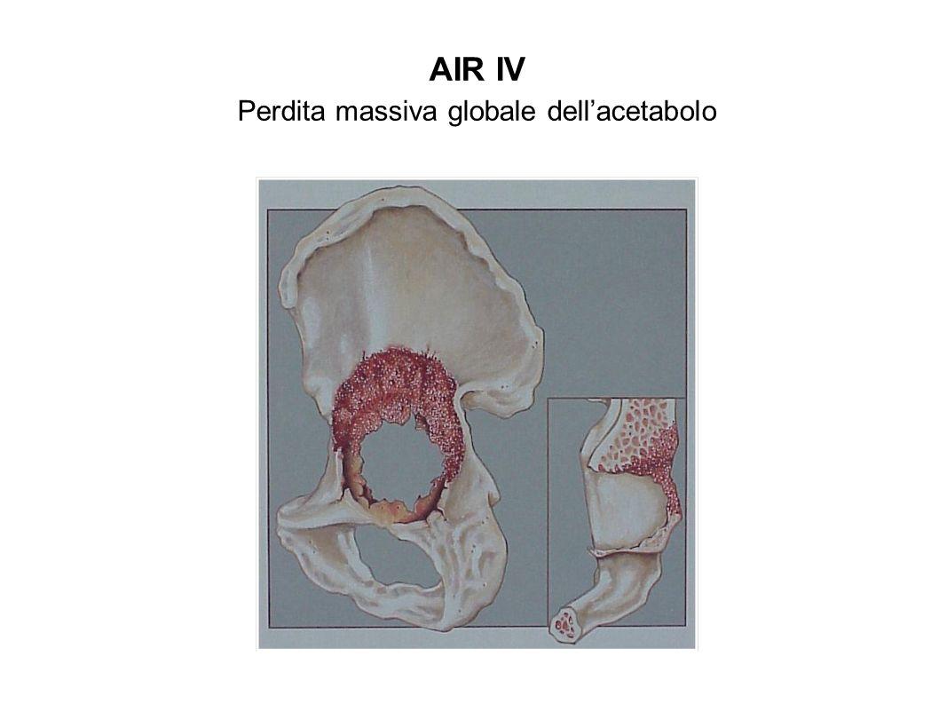 BONE-LOSS FEMORALE GRADO I Canale prossimale allargato,corticale assottigliata, pareti integre GRADO II Corticale assottigliata con difetto di una parete corticale GRADO III Corticale assottigliata con difetto di due o più pareti corticali GRADO IV Difetto circonferenziale massivo prossimale CLASSIFICAZIONE A.I.R