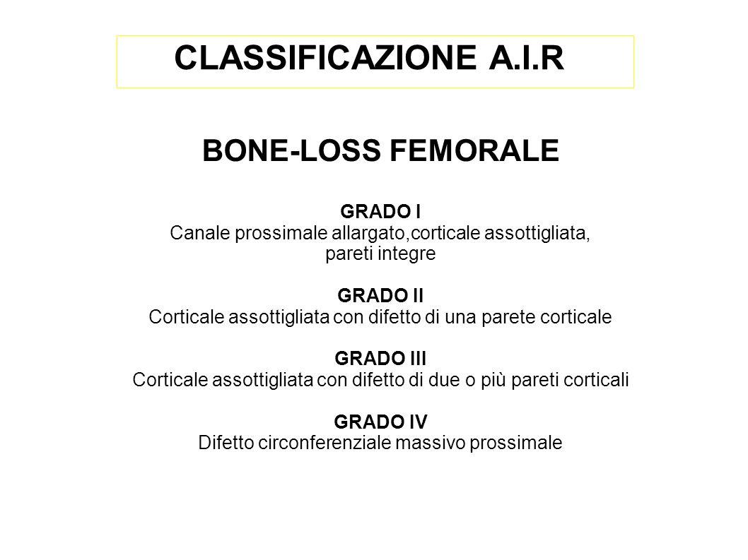 BONE-LOSS FEMORALE GRADO I Canale prossimale allargato,corticale assottigliata, pareti integre GRADO II Corticale assottigliata con difetto di una par