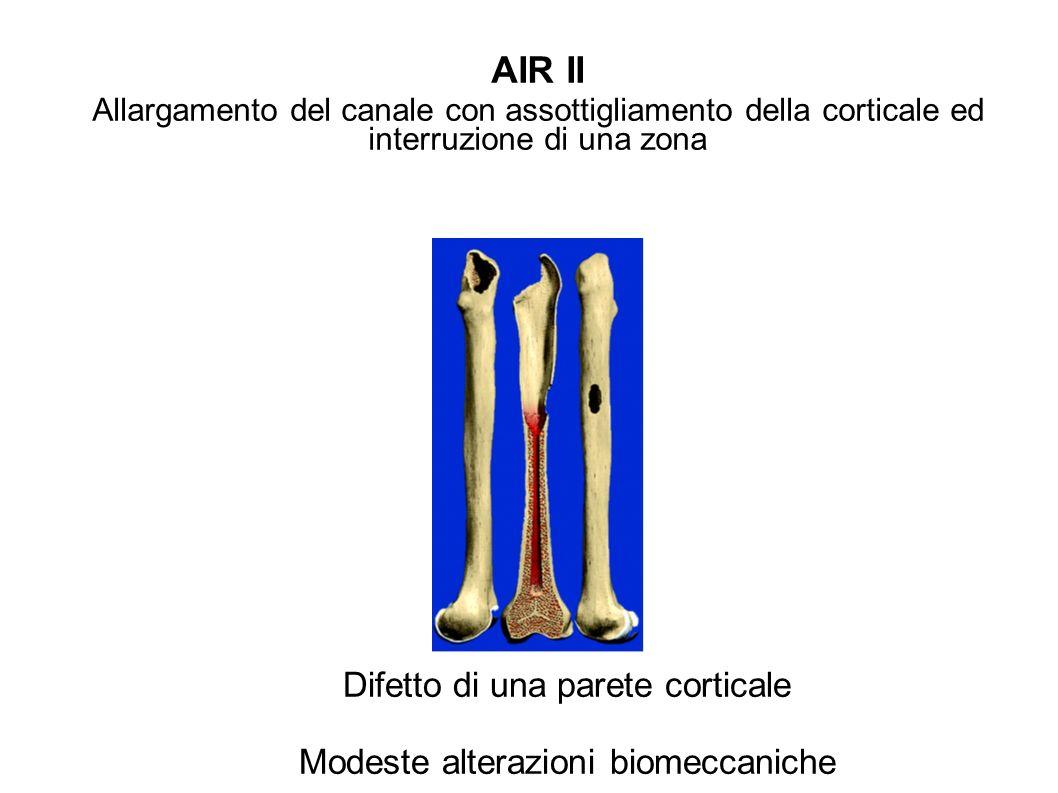 AIR II Allargamento del canale con assottigliamento della corticale ed interruzione di una zona Difetto di una parete corticale Modeste alterazioni bi