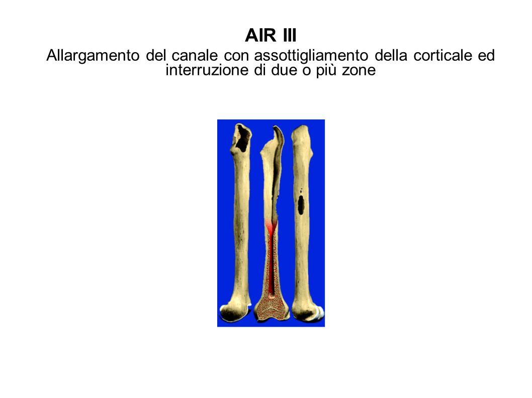 AIR IV Perdita ossea massiva circonferenziale Il femore prossimale non puo assicurare stabilita allo stelo
