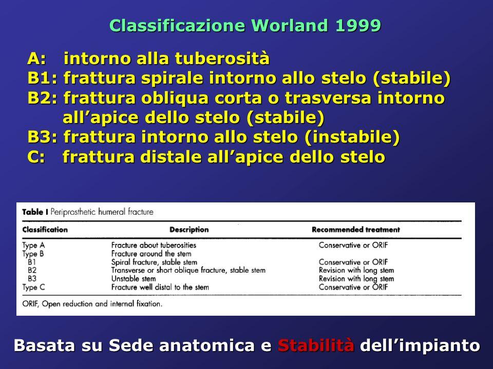 Classificazione Worland 1999 A: intorno alla tuberosità A: intorno alla tuberosità B1: frattura spirale intorno allo stelo (stabile) B1: frattura spir