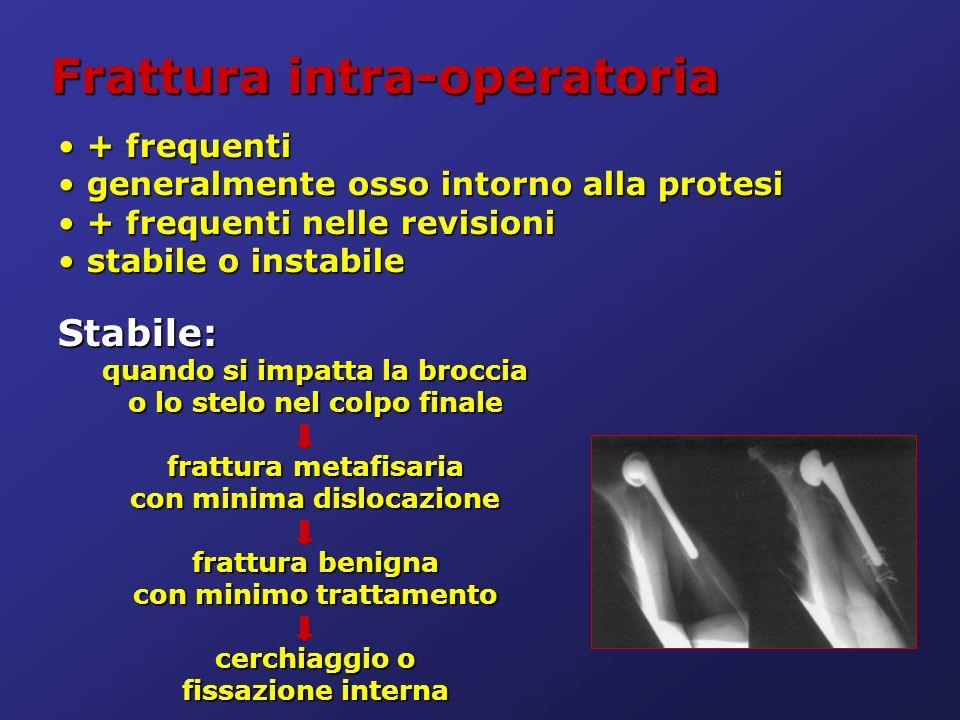 Frattura intra-operatoria + frequenti + frequenti generalmente osso intorno alla protesi generalmente osso intorno alla protesi + frequenti nelle revi